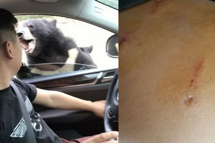 Visitor Mauled at Beijing Badaling Wildlife Park Complains Staff Criticized Him for Breaking Rules