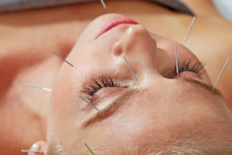"Wikipedia Calls Acupuncture ""Pseudoscience"""